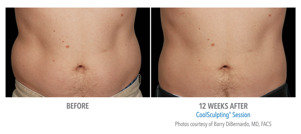 CoolSculpting® Gainesville Florida Before and After Pictures 2