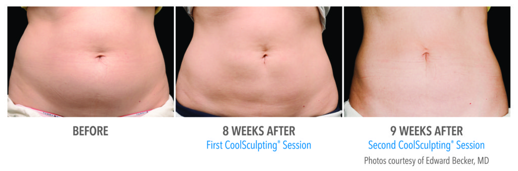 CoolSculpting® Gainesville Florida Before and After Pictures 4