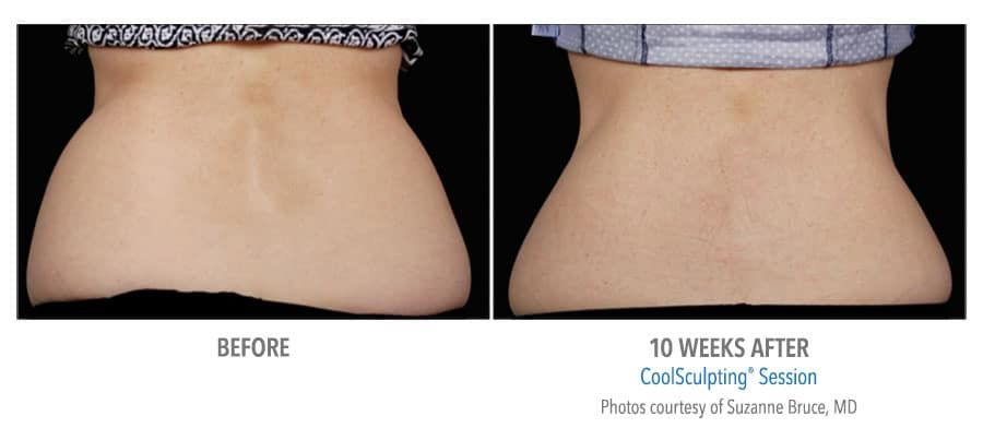 CoolSculpting® Gainesville Florida Before and After Pictures 9