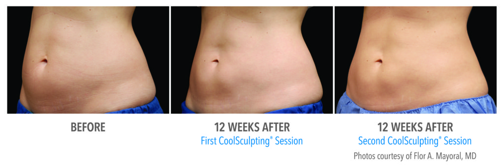 CoolSculpting® Gainesville Florida Before and After Pictures 3