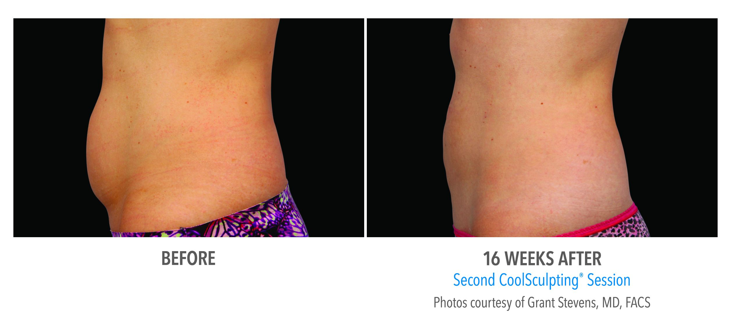 CoolSculpting® Gainesville Florida Before and After Pictures 7