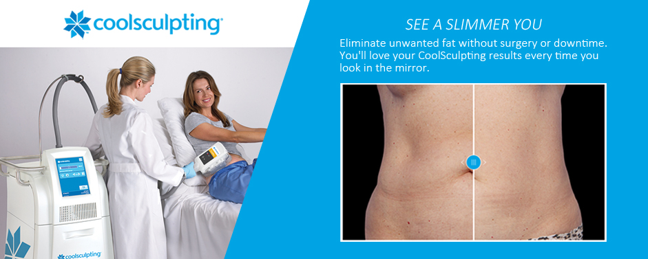 CoolSculpting® Gainesville Florida Before and After Picture