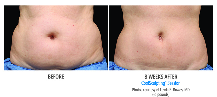 CoolSculpting® Gainesville Florida Before and After Pictures 1